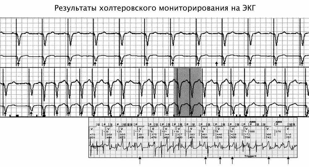 Справка Холтеровского исследования сердца в Спб